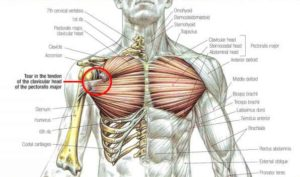 rupture, tear, pectoralis, major, tendon