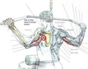 triceps, tear, rupture, pull, up, back, exercise