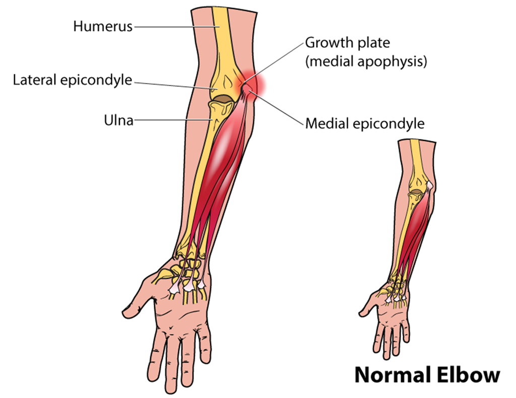 little leaguer Youth Pitcher Elbow humerus ulna radius medial apophysis epicondyle