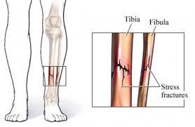 stress. fractures, tibia, fibula