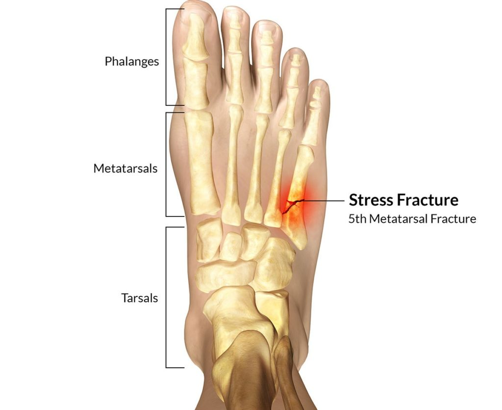 stress, fracture, foot, metatarsal, 5th