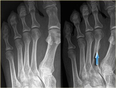 stress, fracture, foot, x-rays, metatarsal,2nd